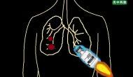 Keytruda又一次领先,获批一线治疗PD-L1高表达晚期非小细胞肺癌(NSCLC)