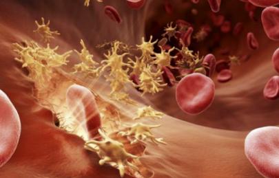 FDA批准血友病新药emicizumab