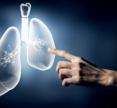 KN042成功,Keytruda有望占据多半肺癌市场