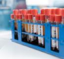 XPO抑制剂加速审批受阻
