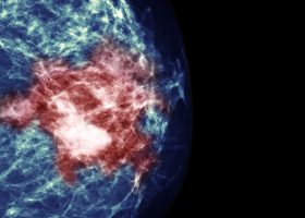 乳腺癌组织单细胞普查
