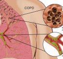 阿斯列康COPD三药组合达到三期临床终点