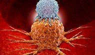T药/化疗组合一线膀胱癌延长PFS