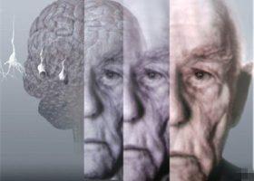 APOE基因和老年痴呆症的探讨(二)
