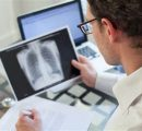 吸入干扰素显著降低新冠恶化风险