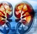 FDA批准IO/TKI组合:兼谈抑制肿瘤细胞的威力