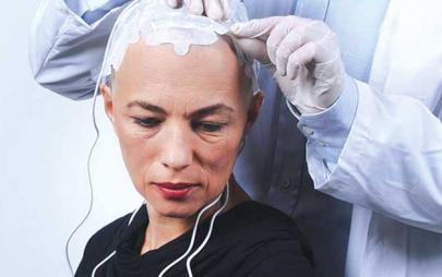 放疗2.0:局部电场疗法或延长二线转移肺癌OS