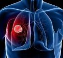 IO组合翻过喜马拉雅、T药进入肺癌维持疗法